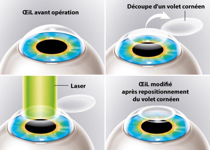 Chirurgie de l'œil au laser